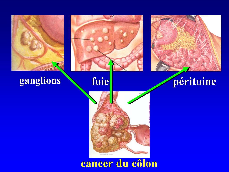 cancer liquide abdominal)